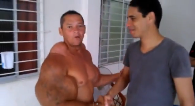 Synthol Gone Wrong! Brazilian Man Who Uses Synthol | Sherdog Forums