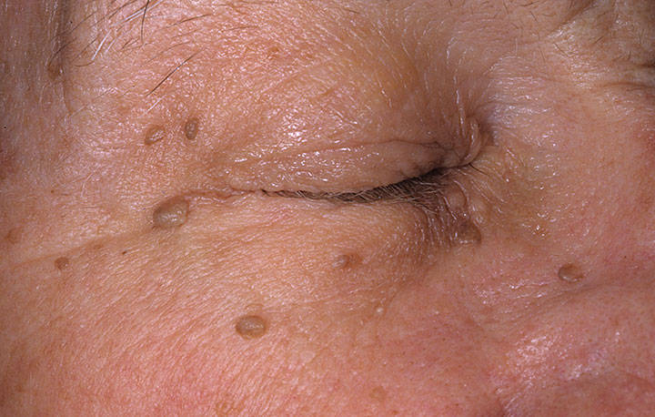 skin tags on face