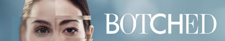 Botched S05E01 1080p WEB x264-TBS